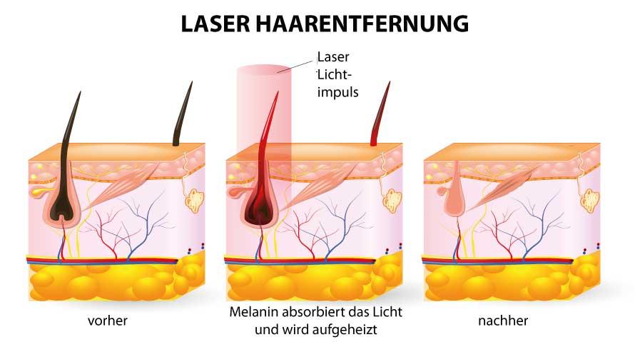 laser haarenfernung berlin friedrichshain skinlifter. Black Bedroom Furniture Sets. Home Design Ideas